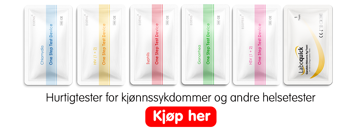 hvordan tester man for klamydia